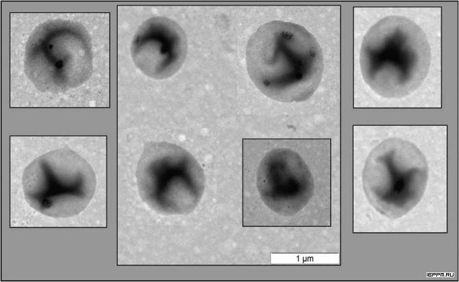 Электронно-микроскопические фотографии бактерий, выделенных из суспензионной культуры, Arabidopsis thaliana (L.) Heynh, полученные на микроскопе LIBRA 120 (Carl Zeiss, Германия)