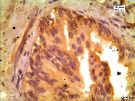 Иммуногистохимическое выявление AMACR на срезах биоптата от больных аденокарциномой предстательной железы препаратом антител, полученных с использованием адъювантных свойств наночастиц золота
