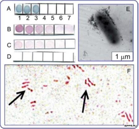 Специфичность Ат против туберкулина (дот-анализ) (A-D), обнаружение антигена на клетках Mycobacterium bovis шт. БЦЖ (E), иммуномикроскопическое выявление клеток M. bovis шт. БЦЖ с использованием антитуберкулиновых Ат (F).