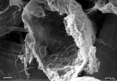 Поверхность агрегата протопластов клеток каллусной ткани моркови (Daucus carota), выявленная без дополнительной фиксации препаратов оксидом осмия